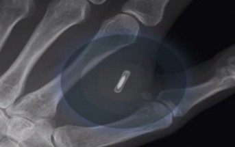 Des puces RFID implantées sous la peau de salariés suédois