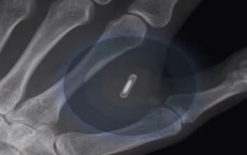 puce RFID dans la main