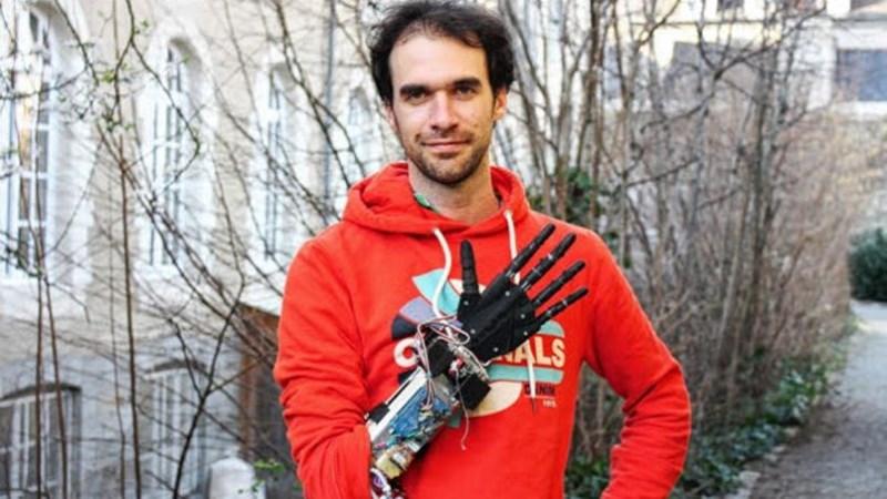 Nicolas Huchet et sa prothèse de main robotisée imprimée en 3d