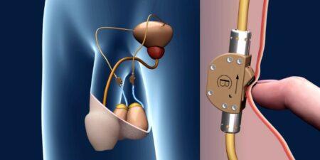 contraception masculine avec un interrupteur dans les testicules