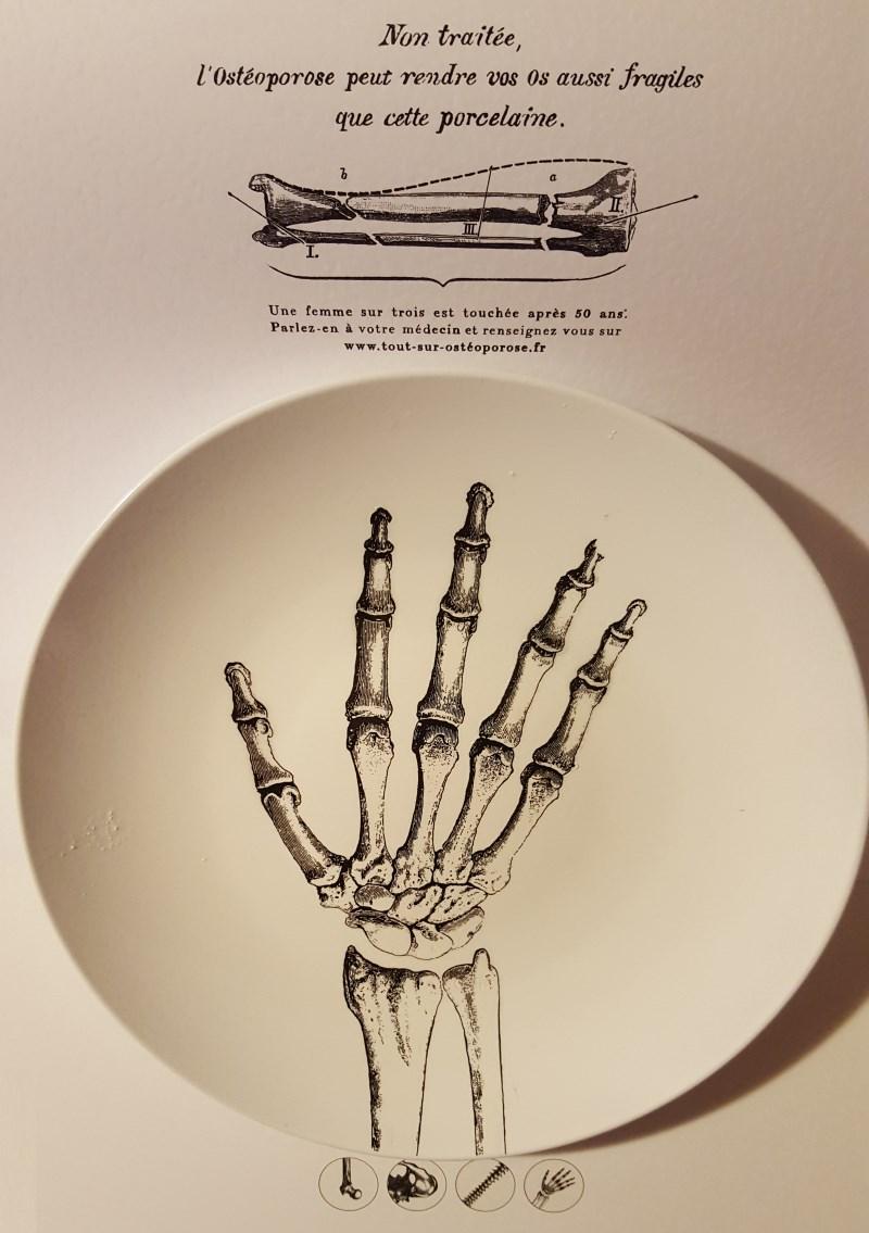 L'ostéoporose peut rendre vos os aussi fragiles que la porcelaine