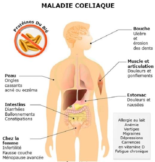 maladie cœliaque