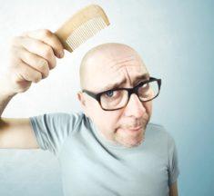 Chute de cheveux : 10 astuces pour lutter contre la calvitie