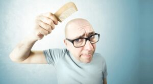 chute de cheveux - calvitie