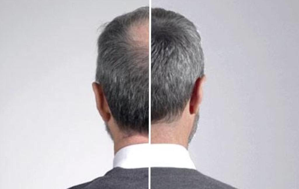 poudre densifiante pour cheveux : avant / après