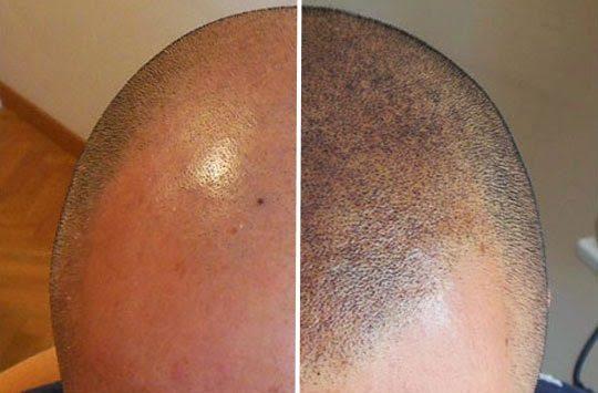 tatouage de crane contre la calvitie : avant / après
