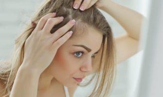 chute de cheveux androgénétique chez la femme