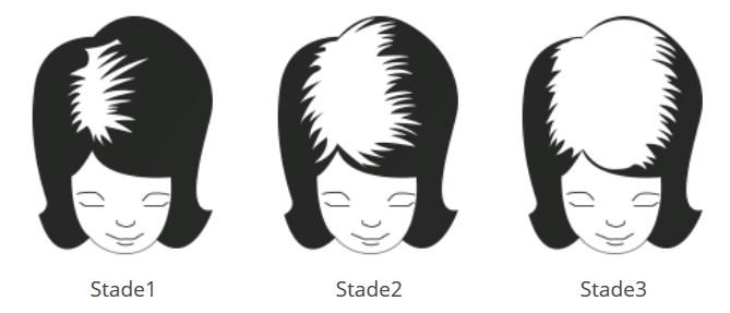 stades de la la chute de cheveux androgénétique chez la femme