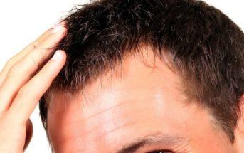 Greffe de cheveux DHI ou FUE : quelle méthode choisir ?