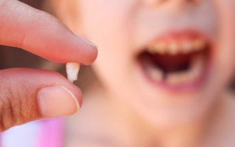 Comment arracher une dent de lait sans souffrance ?