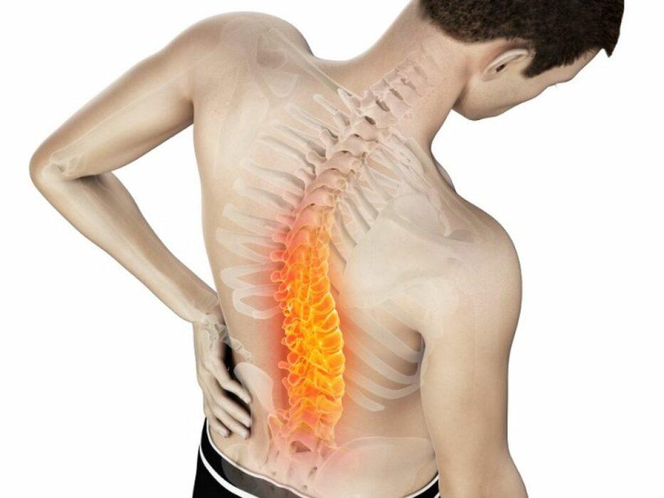 Mal de dos : trois solutions simples contre les douleurs dorsales