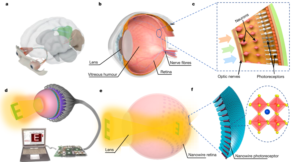 Schéma œil bionique