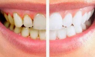 plaque dentaire