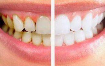 Plaque dentaire : 8 méthodes naturelles pour l'éliminer efficacement