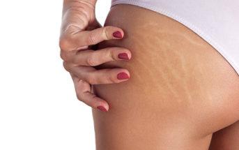 Comment prévenir ses vergetures de grossesse ?