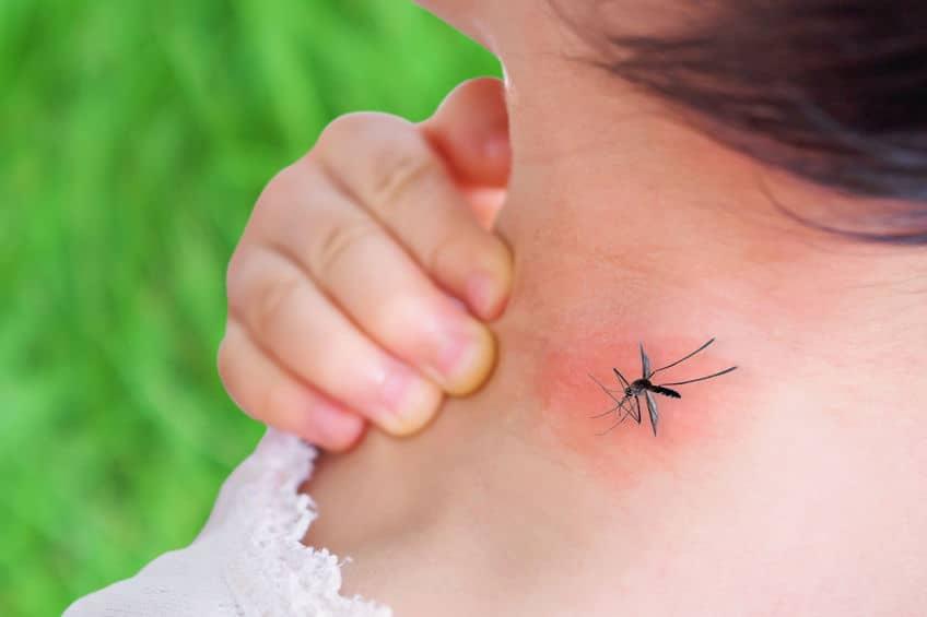 piqûre de moustique bouton