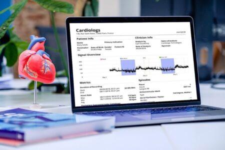 Interface du logiciel Cardiologs