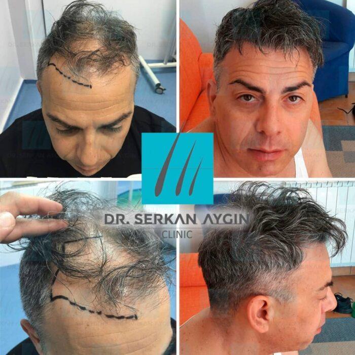 greffe de cheveux turquie : avant après