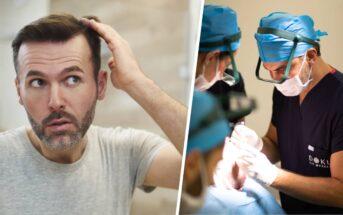 Greffe de cheveux en Turquie : comment bien choisir sa clinique à Istanbul ?