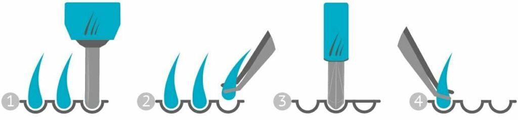étapes de la greffe de cheveux SOFT FUE